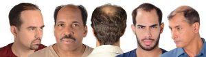 rambut gugur lelaki