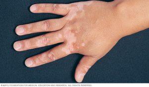 hilangkan vitiligo
